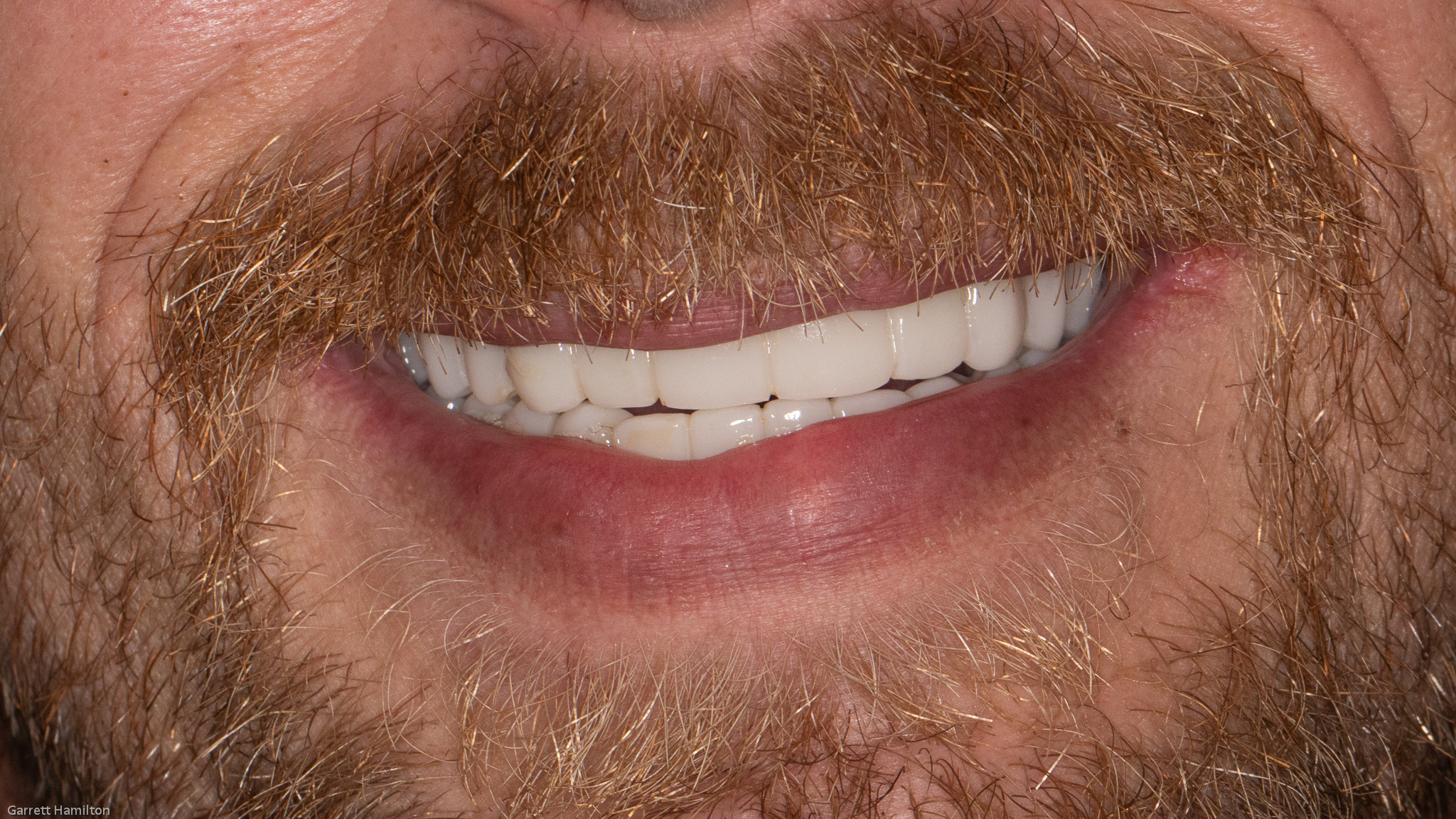 Zirconia Round House - Jefferson City Dentist - tooth filling - composite tooth filling - front tooth filling, affordable dentures, affordable dentures columbia mo jefferson city dentist - columbia mo dentist - dental implants