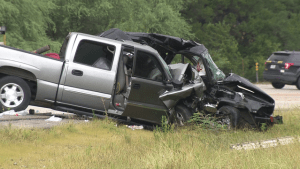 Severe injuries from car crash