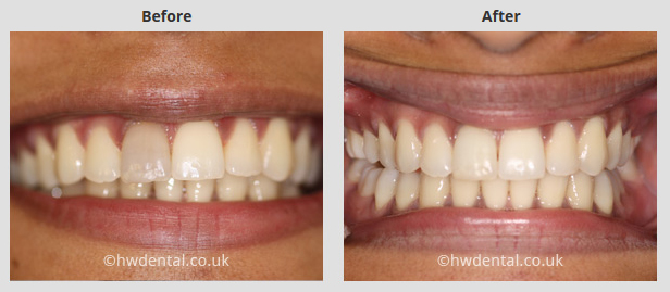 best chair after back surgery pottery barn baby cover teeth whitening north west london - harrow weald dental practice