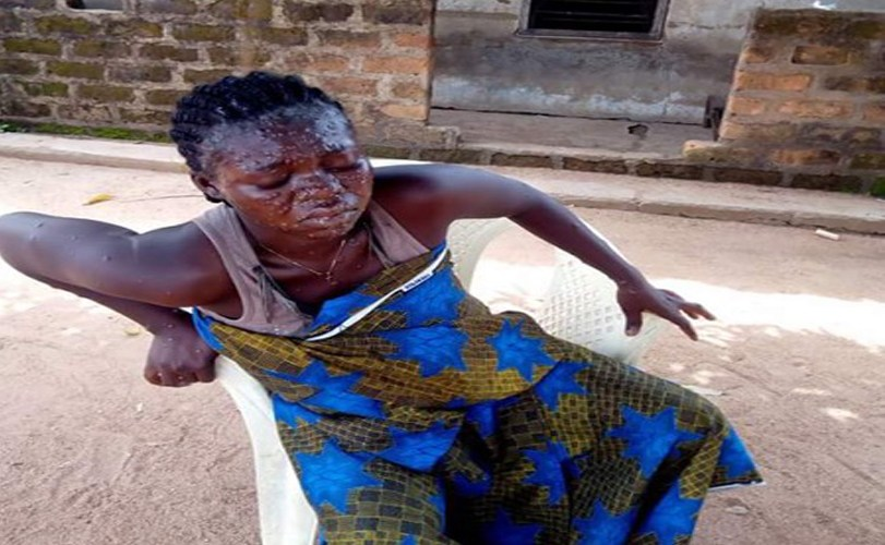 Suspected case of monkey pox in Gboko, Benue State