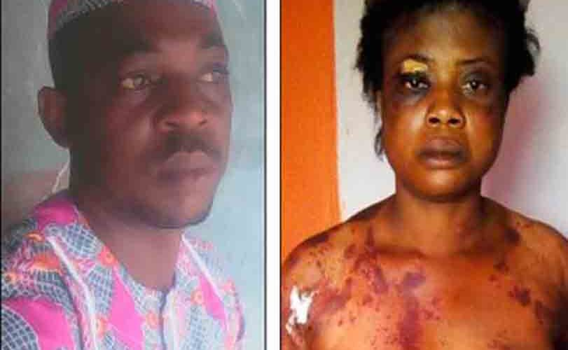 Domestic Violence: How Woman Was Allegedly Brutalized By Her Husband Over Missing N500