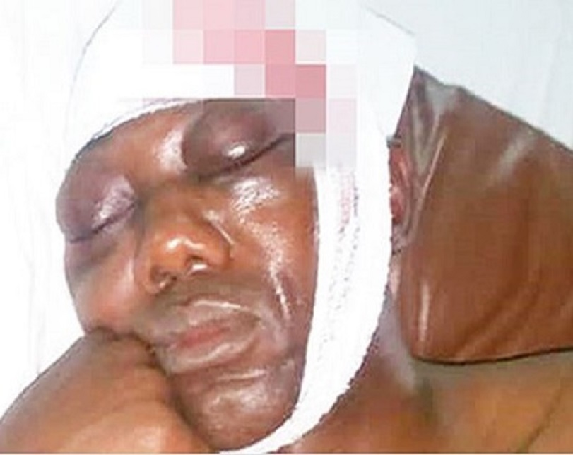 Ogun Landlord Blinds Neighbour Over Security Dues (Photo)