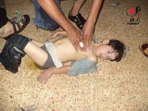 الطقل محمد أحد ابناء العائلة اثناء وجوده في المشفى الميداني بعد اصابته بضربات الكيماوي