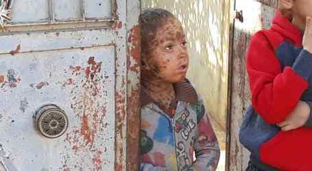 «حراشف السمكة».. مرض نادر يصيب طفلاً في ريف حلب الشمالي