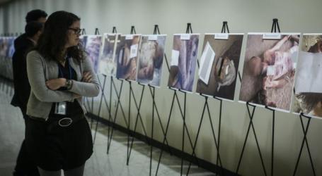 """صور ضحايا التعذيب تثير ضجة واسعة مجددا.. و""""مجموعة ملفات قصير"""" تعلّق على الأمر"""