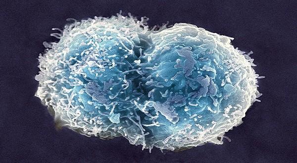 stem cell technology upsc essay notes mindmap