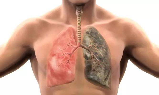 Αποτέλεσμα εικόνας για καπνισματος