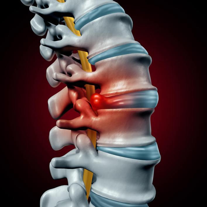 ستة تمارين لعلاج انفتاق القرص الفقري جربها قبل التفكير بالجراحة - تمارين تساعد على تخفيف ألم العنق الناتج عن انزلاق القرص في أعلى العمود الفقري أو في العنق