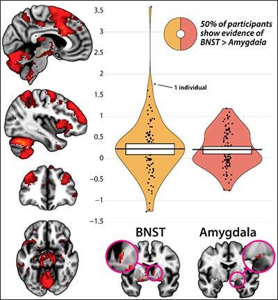 miedo y ansiedad cerebro