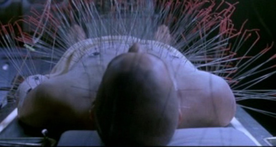 This is what your body would look like if you used acupuncture to cover the same ground that Ear Reflexology does.