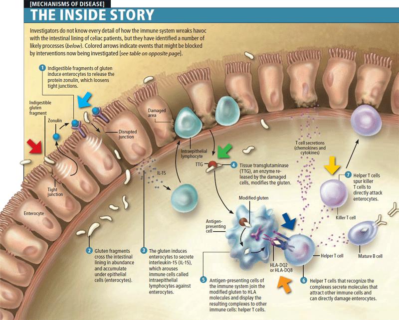 illustration of immune system deficiencies