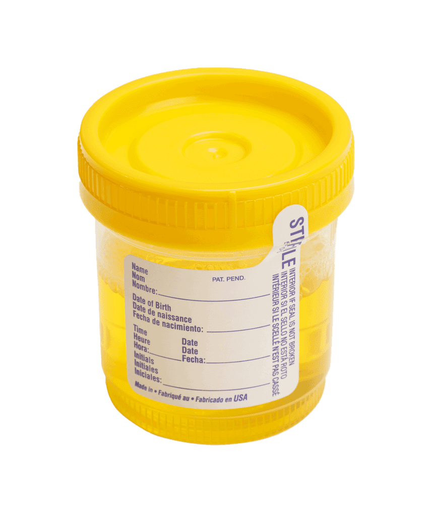 yellow sample pot for urine test collection