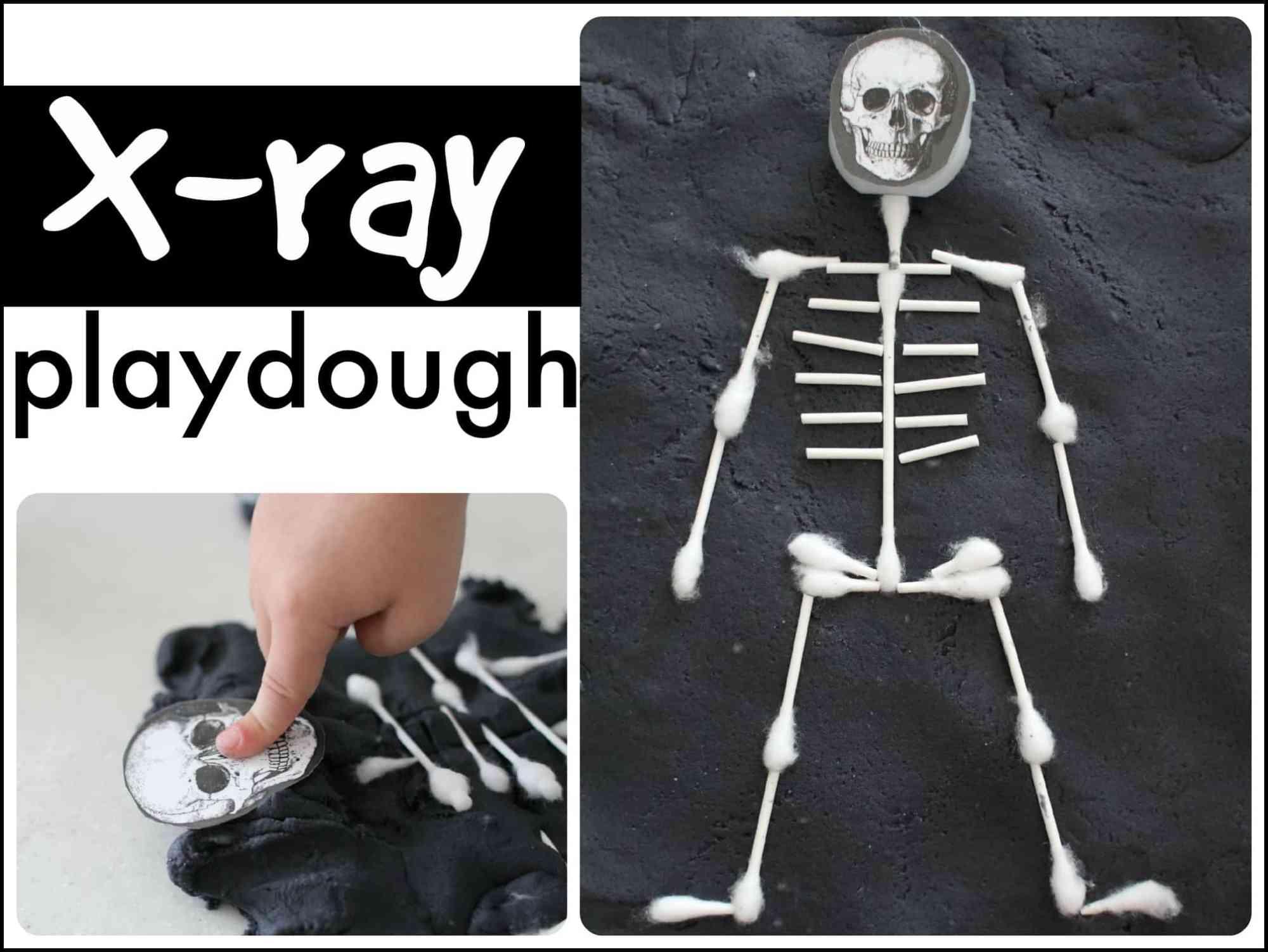 hight resolution of x ray playdough