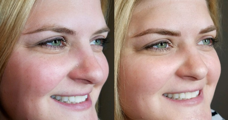 Microblading – Getting #eyebrowsonfleek
