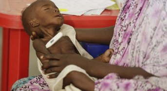 2017 Budget: FG Fails To Cater For Malnourished Nigerian Children