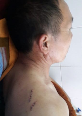 A close up of one of Brother Nou's injuries.