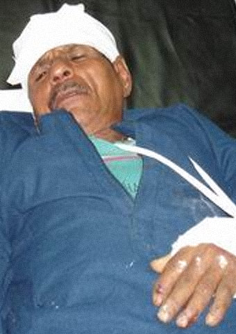 An Egyptian man is receiving medical care after being attacked for his faith.