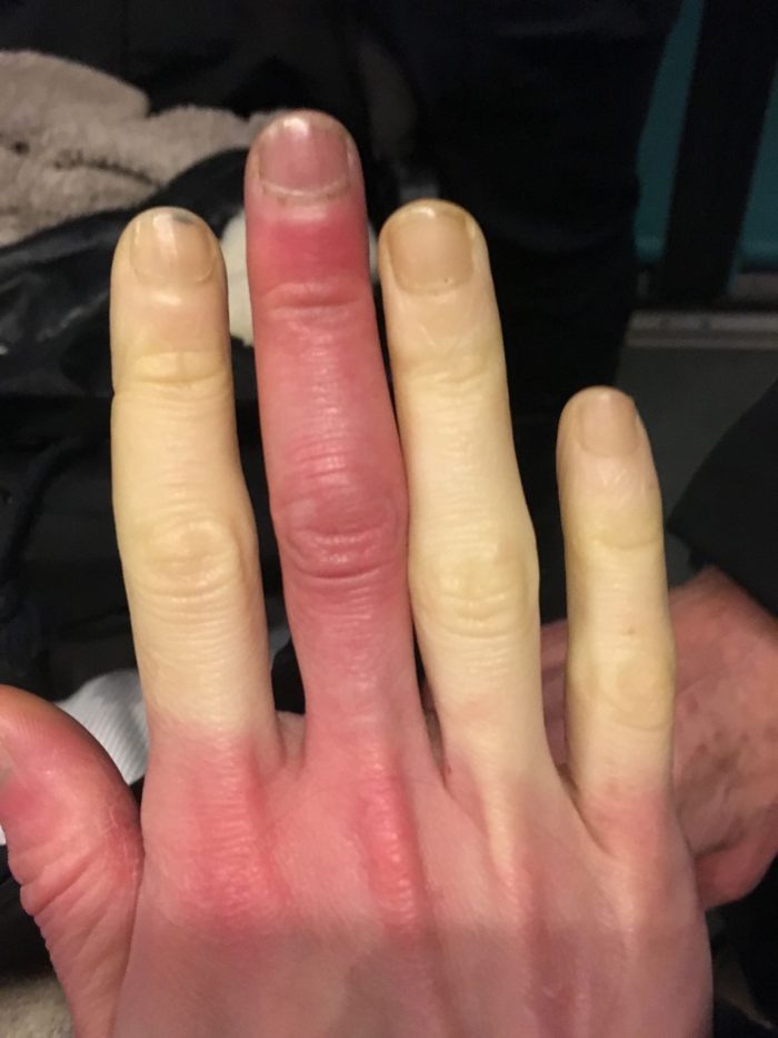 Raynauds syndrom