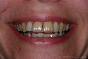 PORCELAIN VENEERS-before_site