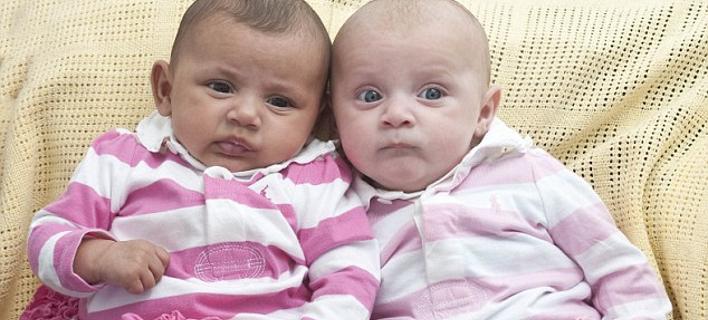 Μια στο εκατομμύριο – Γεννήθηκαν δίδυμα κοριτσάκια με διαφορετικό χρώμα [εικόνες]