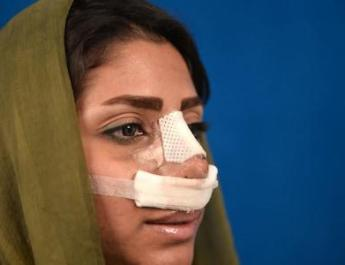 ifmat - Iranian regime will flog and jail fans of cosmetic surgery