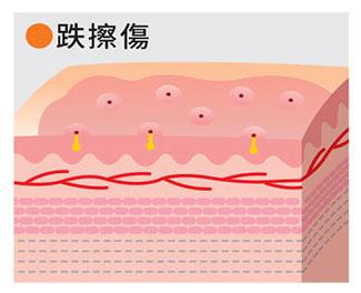 3.創傷分類與處理方法-全新一級絆 IGIBAN / 全新生醫股份有限公司