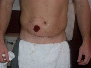 stoma and incision