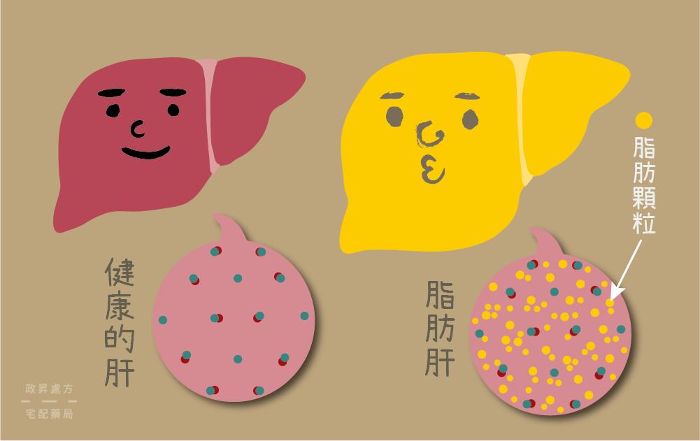 脂肪肝的外觀會比正常肝臟多出脂肪顆粒