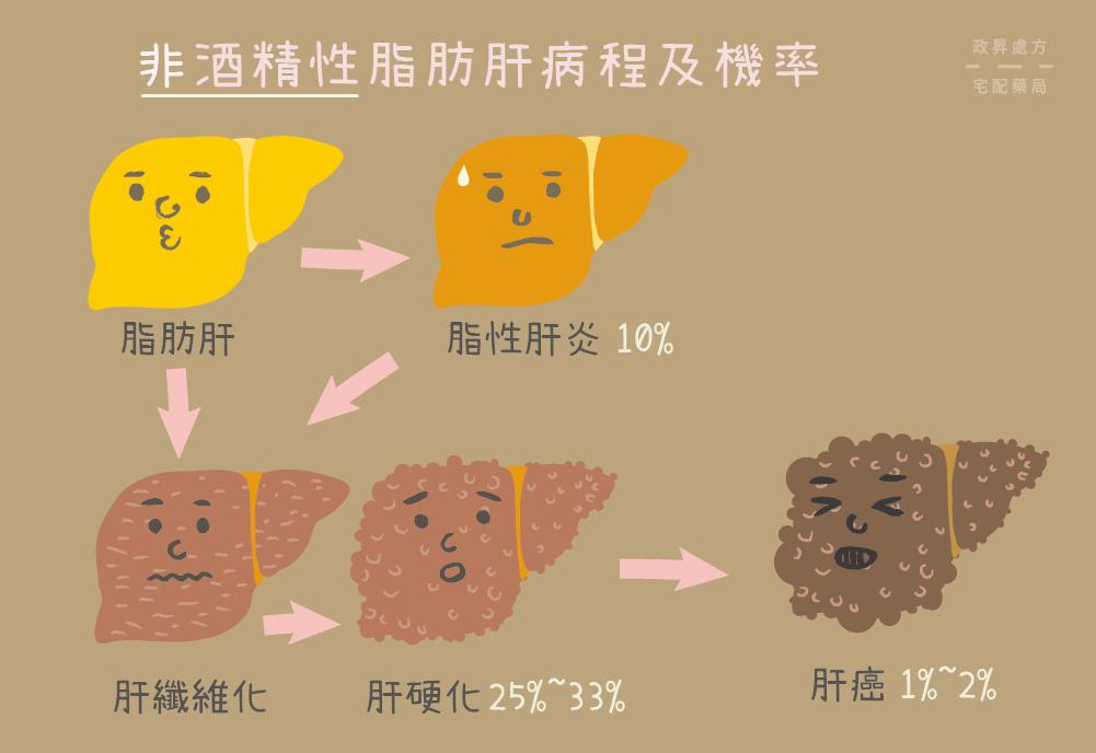 非酒精脂肪肝的病程發展與患病機率