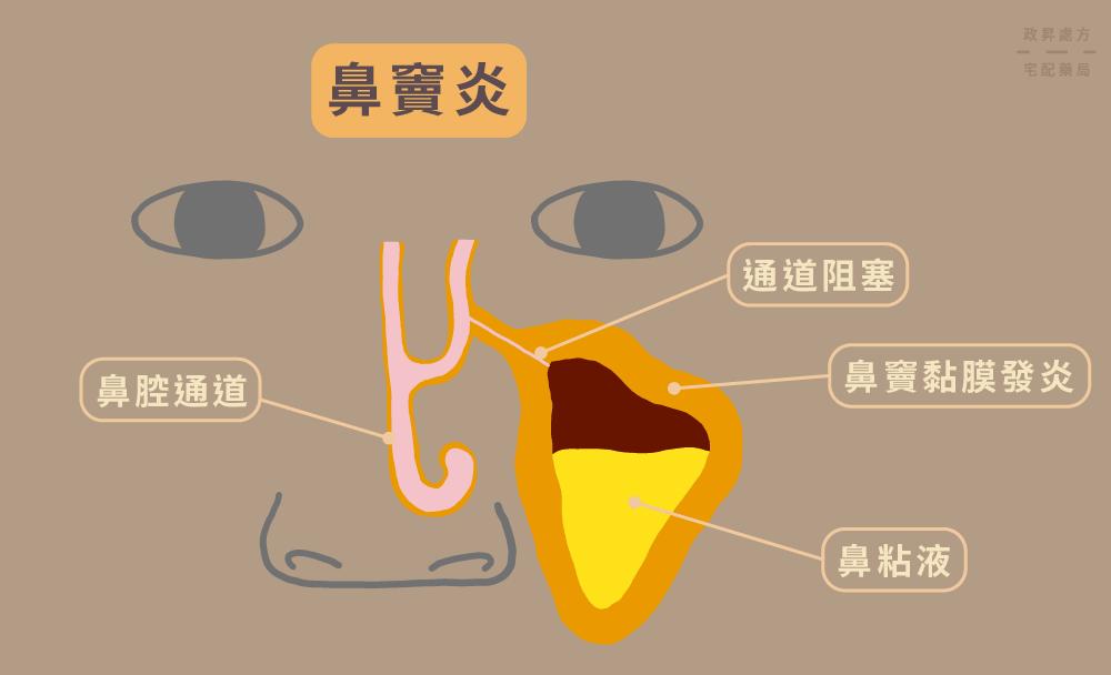 鼻竇構造與三種鼻竇炎原因
