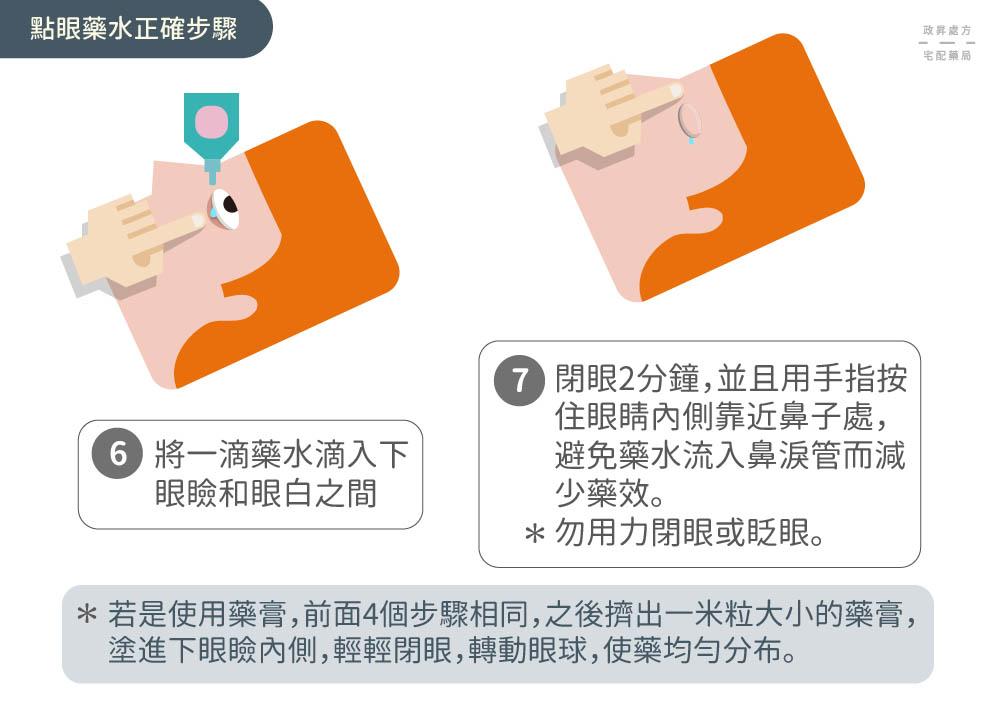 點眼藥水的正確步驟第六和第七步