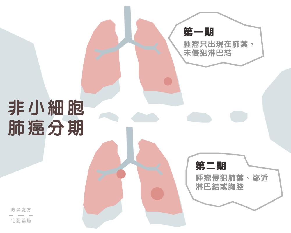 第一期與第二期肺癌的變化