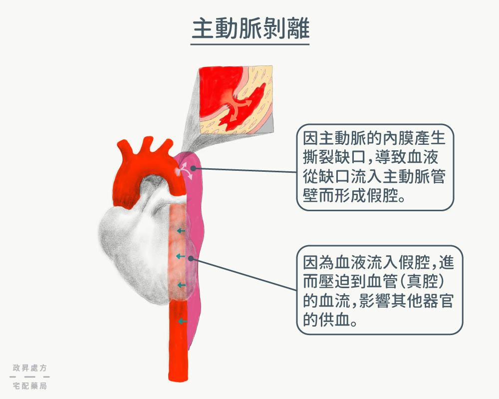 心臟與破裂滲血的主動脈
