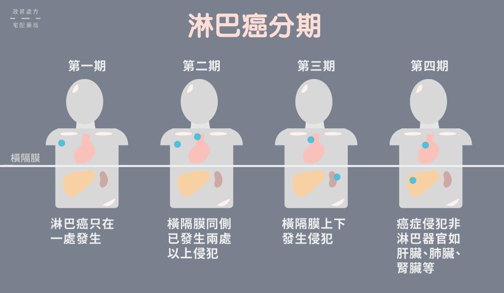 4 期淋巴癌侵襲範圍的人型