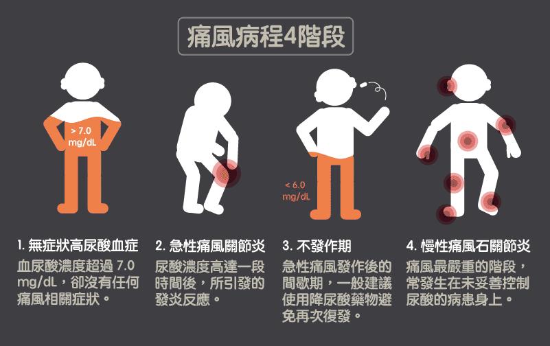 痛風病程的四個階段