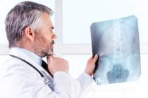 Doctor Examining X-ray.