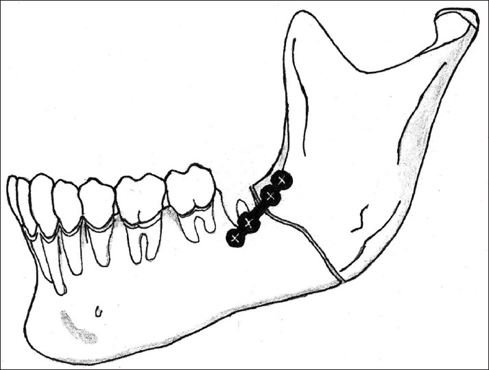 Tooth in the line of fracture: Its prognosis and its