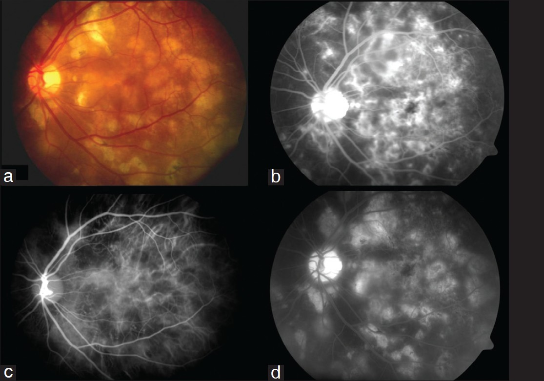 Figure 4: Acute Multifocal Posterior Placoid Pigment Epitheliopathy