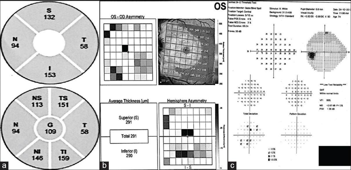 Diagnostic accuracy of posterior pole asymmetry analysis