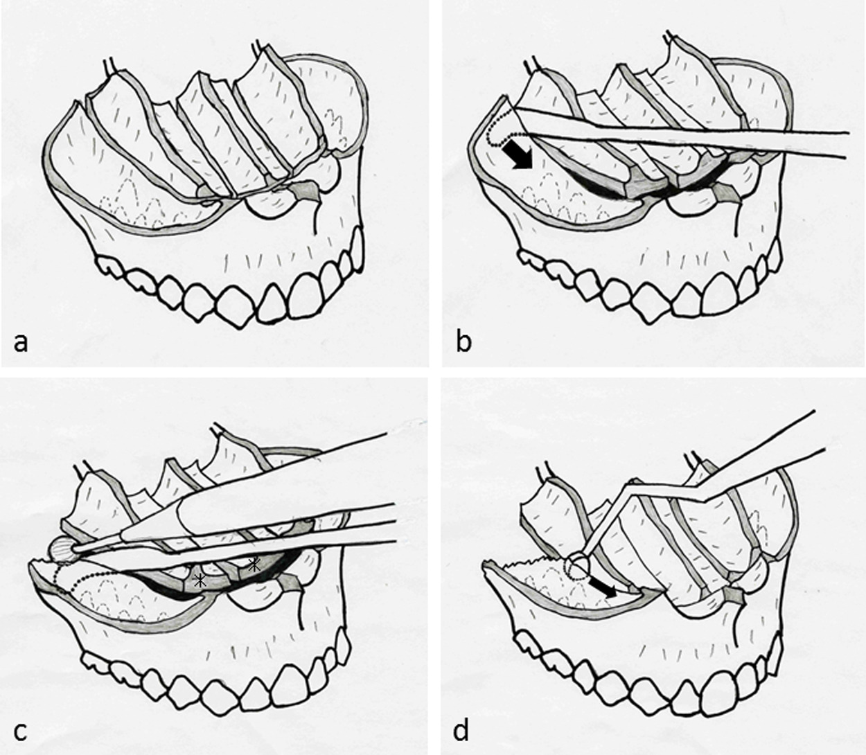 Maxillary single-jaw surgery combining Le Fort I and