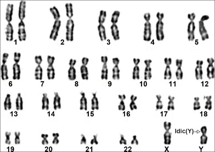 Gonadal Dysgenesis, 46,XY; Swyer Syndrome