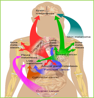 Figure 1: Cancer metastasis (spread) to different parts of the body