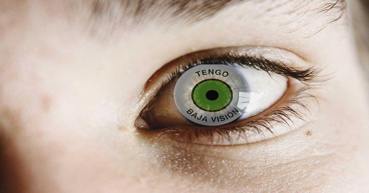 Fotomontaje de una cara en la que el ojo contiene el distintivo de Tengo Baja Visión
