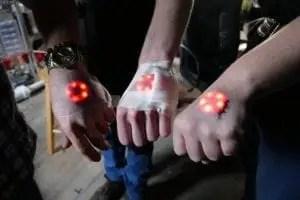 Dispositivi Northstar v.1 inseriti sotto la pelle del dorso della mano.