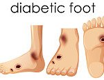 Biomechanical modelling of diabetic foot ulcers: A computational study