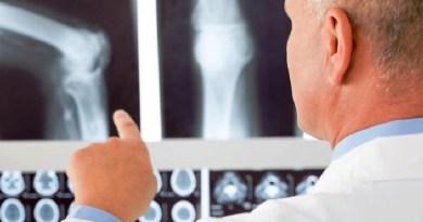 Aumentano in Italia gli interventi per l'impianto di protesi ortopediche: in 15 anni sono raddoppiati quelli al ginocchio e quintuplicati quelli alla spalla