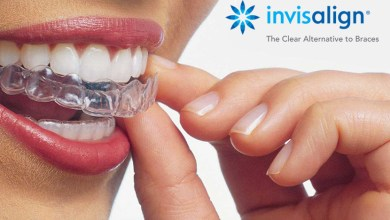 Photo of Invisalign, quando l'ortodonzia è anche estetica