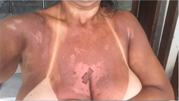 ITABUNA: Mulheres denunciam clínica por queimaduras durante bronzeamento natural com fitas 7