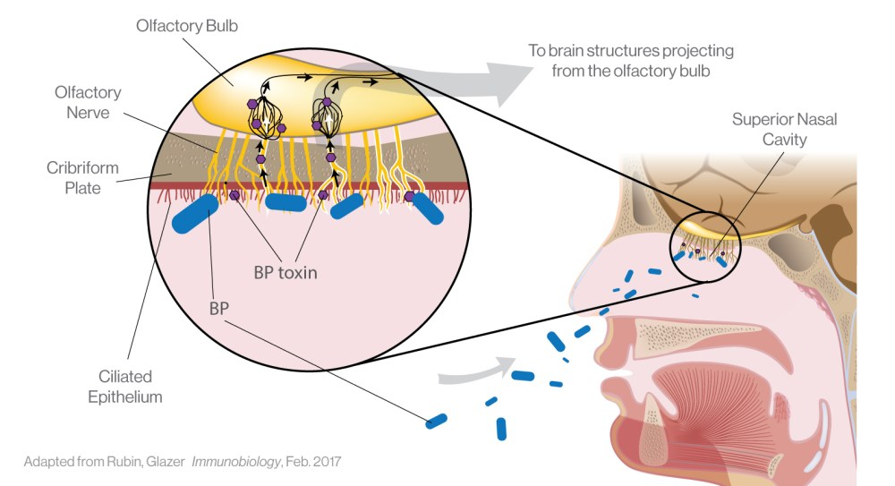 medium resolution of pertussis diagram manual e bookiliad biotechnologiesiliad biotechnologies is partnered with leading scientists to investigate the relationship
