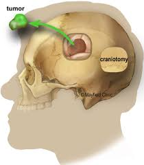 glioblastoma cancer brainer tumor surgery diagram